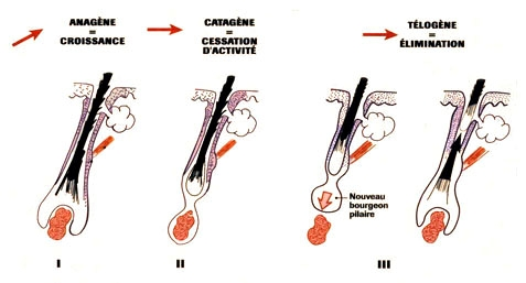 implantation capillaire toulouse