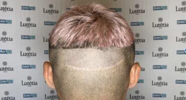greffe de cheveux râtée